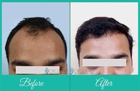 Reviews On Synthetic Hair Transplant | biofibre synthetic hair implant in pune nido artificial