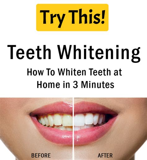 teeth whitening how to whiten teeth at home in 3 minutes