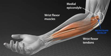 bench press wrist tendonitis pride only hurts but is temporary olympus health
