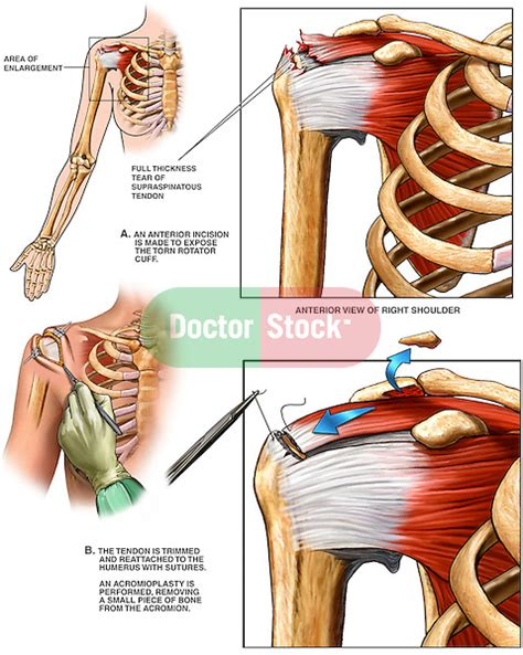 torn rotator cuff diagram thickness rotator cuff tear with surgical repair