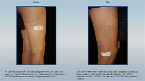 advanced laser vein care