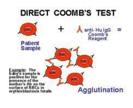 test di coombs diretto coombs test direct indirect positive negative results