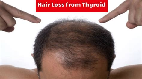 10 things that stopped my thyroid hair loss does taking thyroid medication cause hair loss