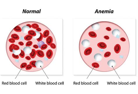 what causes anemia in dogs sudden anemia in term anemia in treatment for anemia in petmd