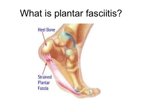 What Is Planter Fascitis by Plantar Fasciitis Presentation
