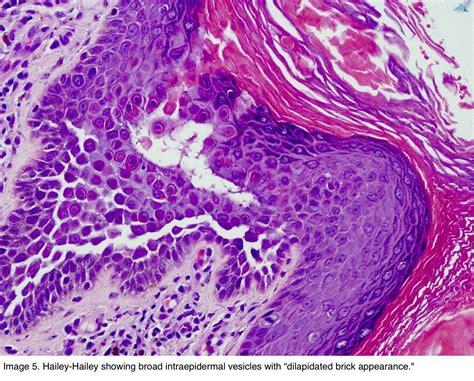 Skin Adnexal Tumors Pathology Outlines by Pathology Outlines Hailey Hailey Disease