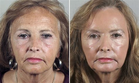 light chemical peel before and after chemical peels in new jersey the parker center for