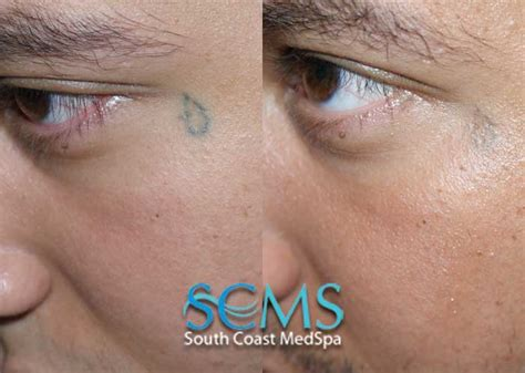 eyeball tattoo removal laser removal gallery before and after laser