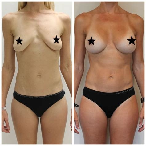 best breast implants to get best 20 implants ideas on fertility cycle