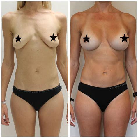 best breast implant surgeon best 59 breast augmentation surgery ideas on