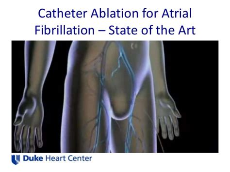 afib ablation side effects everyone benefits from atrial fibrillation ablation