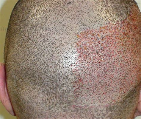fue hair transplant in ludhiana at affordable cost fchtc
