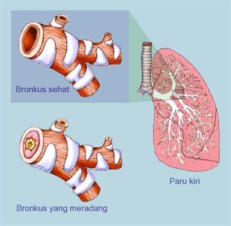 Obat Herbal Untuk Batuk Bronkitis Kronis pengobatan alami untuk penyakit bronkitis kronis