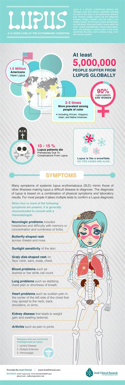 lupus infographic autoimmune disease that affects mostly