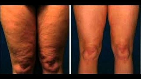 Baby Skin Slim Zenfone2 Laser5 die besten cellulite entfernung vor und nach