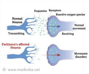 Wellness Detox Center Parkinsons by Parkinson S Disease Causes Symptoms Diagnosis Treatment