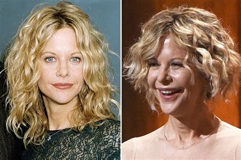 when did meg ryan have a face lift meg ryan s plastic surgery doctor explains what she did