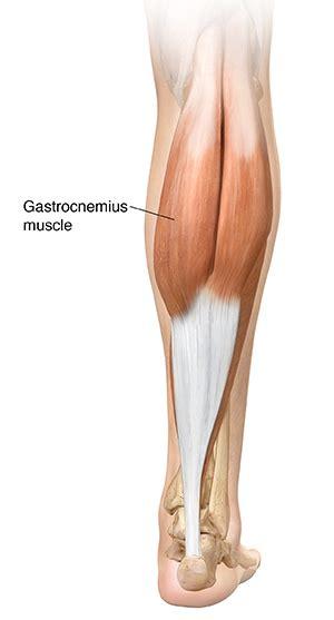 freehand calf muscle skin tear understanding gastrocnemius muscle tear