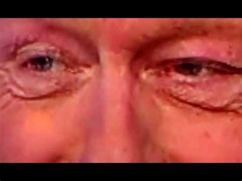 clinton eye color bill clinton his change shape and color