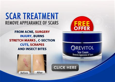 c section products where to buy revitol scar removal cream blogph net