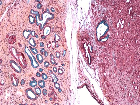 pancreatic pancreas cancer fred hutchinson cancer