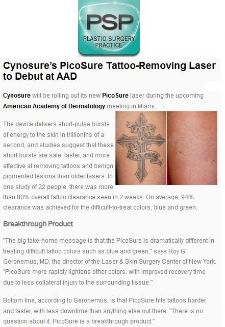 laser tattoo removal knoxville tn removal knoxville