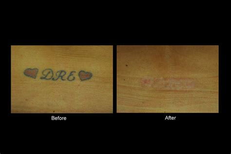 q switched laser tattoo removal bellevue laser and cosmetic center removal