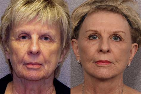 women face lift top 10 most popular plastic surgery procedures for women 2014