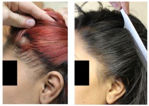 hair transplant for black women traction alopecia in black women is hair transplant an