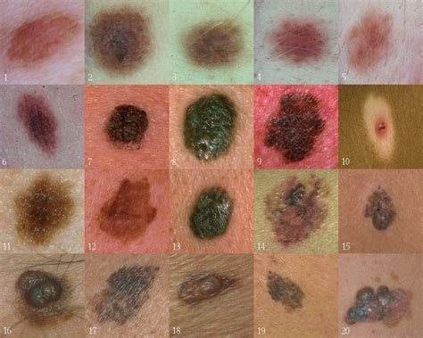 types of cancer pictures types of skin cancer
