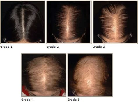 female pattern hair loss pictures how do you know if hair loss is hereditary