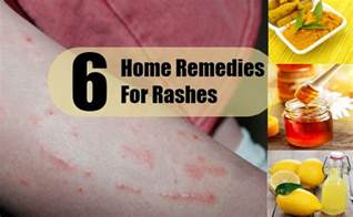 home remedy for rash top 6 home remedies for rashes search home remedy