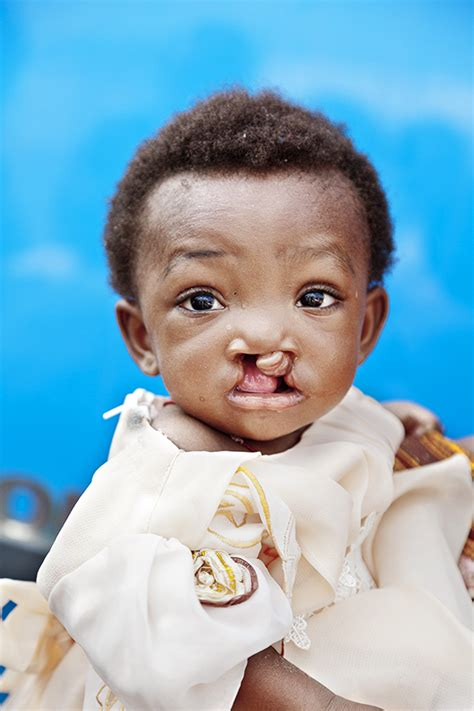 Turns Back On Operation Smile by In Family S Experience Turns To Advocacy