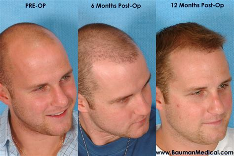transplant hair second round draft dr alan bauman review plastic surgeon doctor florida