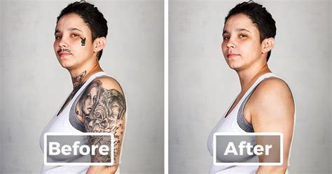 full body tattoo removal 9 ex members with their tattoos removed bored panda