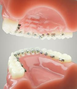Harga Clear Retainer if adults think orthodontic braces are only for
