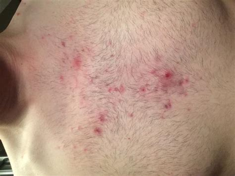 simple ingrown hair in chest please help me identify and cure my chest acne general