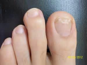 what does toenail fungus look like what does it look