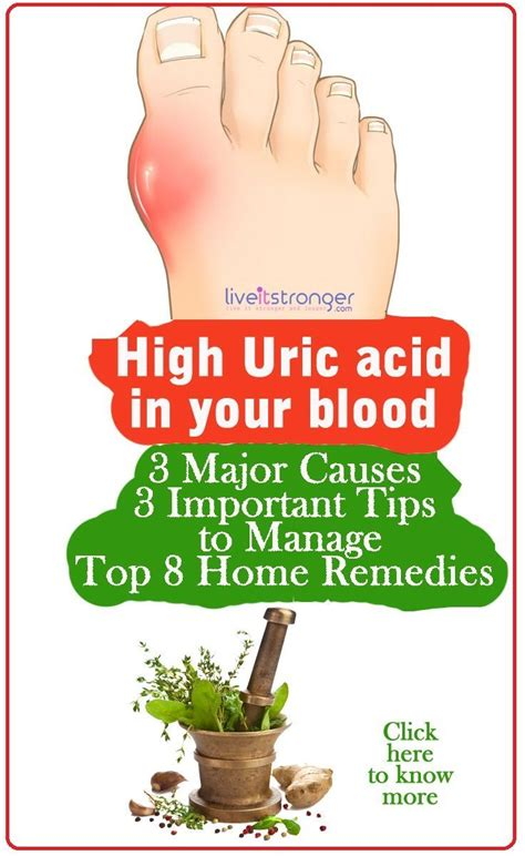 Familydr Uric Acid what is the cause of high uric acid level in blood gout hip gumbo inflammation gouty arthritis