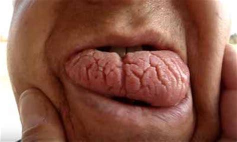 imagenes de manchas blancas en la boca 191 por qu 233 se parte la lengua causas de la lengua fisurada