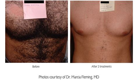 male genital hair removal before after photos male genital hair removal before after photos