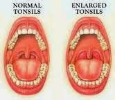 Obat Herbal Amandel Mujarab obat herbal amandel terbaik obat herbal pembengkakan rahim