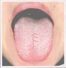 tongue color meaning what does your tongue say about you kate mcdougall