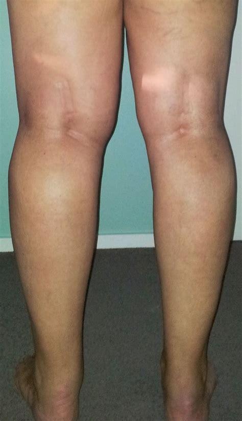dolore alla caviglia lato interno bones of the foot left anatomy chart