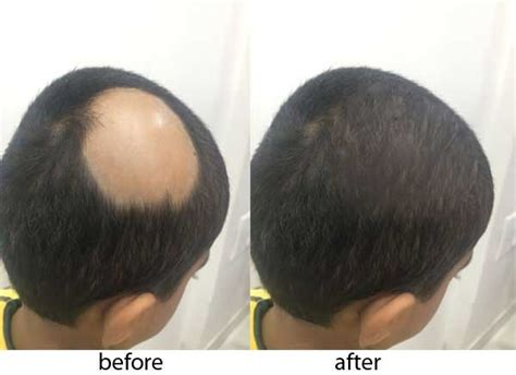 circular pattern hair loss what is hair baldness treatment skin and surgery