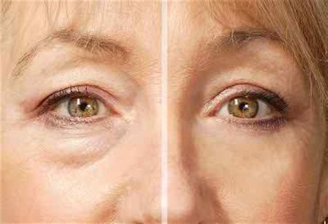 eye bags herbs solutions by nature