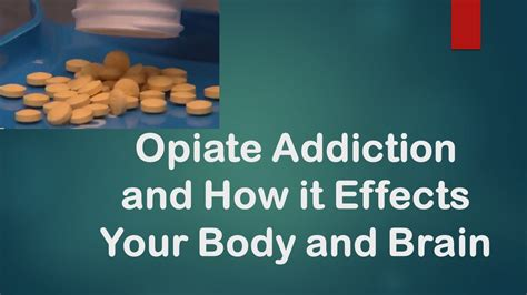 Opiates Detox How by How Opiate Addiction Happens And How To Recover