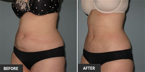 lipo light vs coolsculpting weight loss with liposuction in st louis st