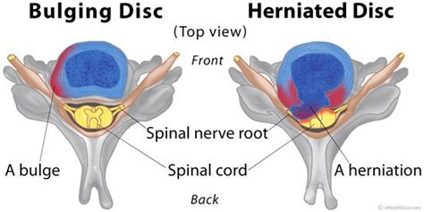 inversion table cervical disc herniation bulging and herniated disc difference symptoms