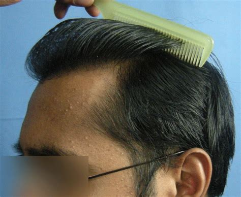 laser hair removal near me hairstyle gallery male models picture